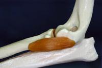 肘関節形成不全